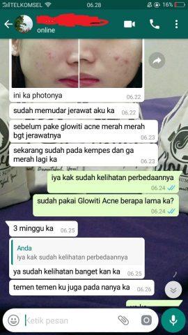 acne8